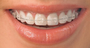 clear braces Richmond VA traditional braces vs Invisalign
