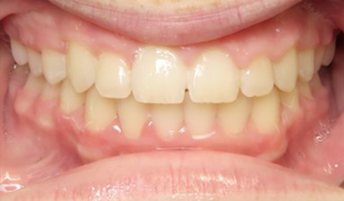 1 after Richmond Orthodontist